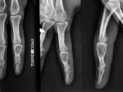 arex bone in phalanx chondroma