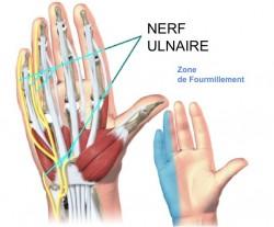 compression du nerf ulnaire au poignet