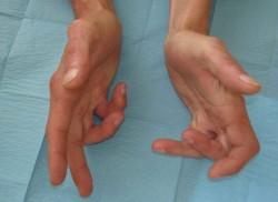 maladie des doigts de la main