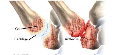 schema arthrose
